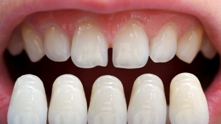 Dr_Frank_Thoese_Therapie_Bleaching