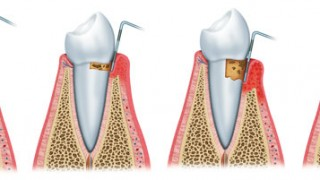 Dr_Frank_Thoese_Therapie_Parodontose